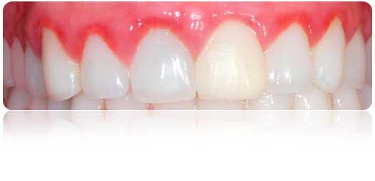 ¿Qué son las enfermedades periodontales?